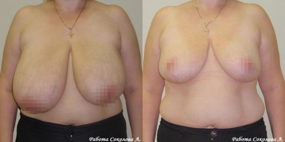 Уменьшение груди до третьего размера у хирурга Соколова А. А. фото до и после