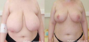 Размер груди пациентки на момент обращения к врачу был примерно 10-11. Отмечалось выраженное смещение сосково-ареолярного комплекса вниз. Пластическим хирургом была проведена редукционная маммопластика, в результате которой удалось достичь комфортного размера груди – примерно 4-5.