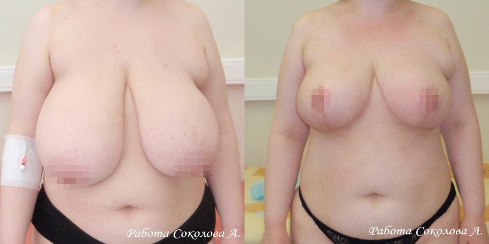 Уменьшение груди с 10 размера до 4, фото до и после