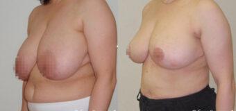 Пациентка предъявляла жалобы на большой размер груди и связанный с этим эстетический дискомфорт. Размер груди пациентки до операции – 8. С помощью редукционной маммопластики был уменьшен до 4.