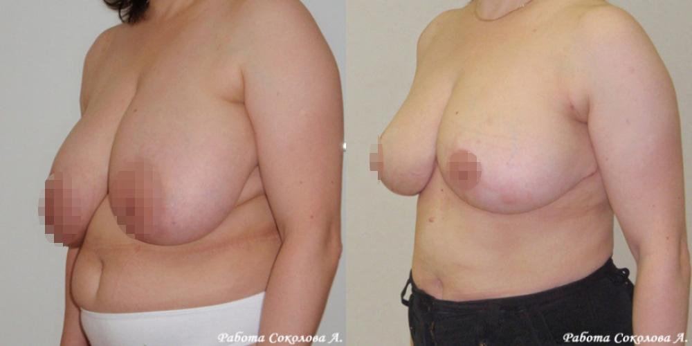 Уменьшение груди с 8 до 4 размера, фото до и после