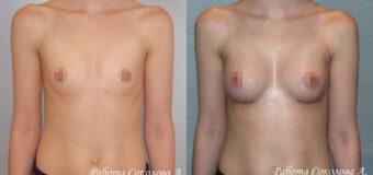 Увеличивающая маммопластика через подгрудный доступ. Для пациентки были подобраны анатомические импланты Евросиликон объемом 190 куб. см., которые были установлены под большую грудную мышцу.