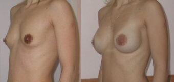 Увеличение груди через периареолярный доступ