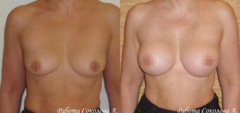 Увеличение груди через подгрудный доступ
