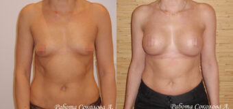 Пациентке была проведена увеличивающая маммопластика: через субмаммарный доступ под большую грудную мышцу установлены анатомические имплантаты Евросиликон объемом 290 куб. см.