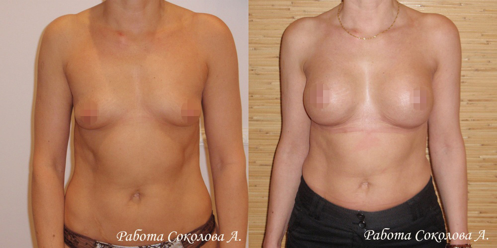 Увеличение груди через субмаммарный доступ, фото до и после