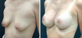 Пациентка обратилась к пластическому хирургу с жалобами на недостаточный объем груди и ее неудовлетворительную форму (тубулярная грудь). Была выполнена операция по увеличению груди имплантами с периареолярной подтяжкой.