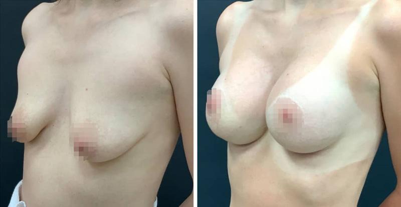 Увеличение груди имплантами с периареолярной подтяжкой, фото до и после