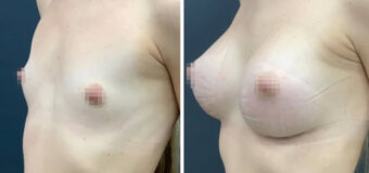 Увеличение груди круглыми текстурированными имплантами