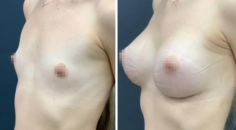 Увеличение груди круглыми текстурированными имплантами, фото до и после