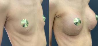 Увеличение груди полиуретановыми имплантами POLYTECH объемом 380 мл.