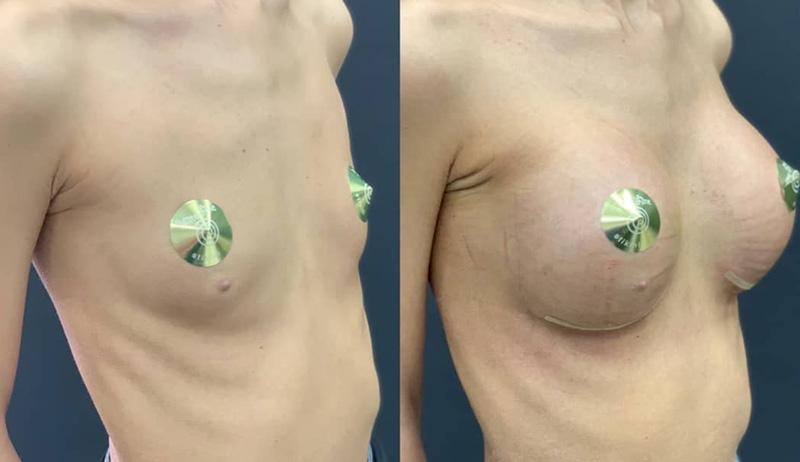 Увеличение груди полиуретановыми имплантами, фото до и после