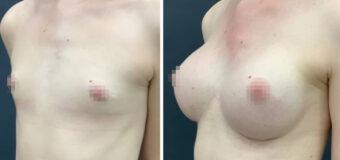 Увеличение груди круглыми текстурированными имплантами 400 мл, установленными через подгрудный доступ в двухплоскостной карман (часть импланта находится под мышцей и часть под железой).