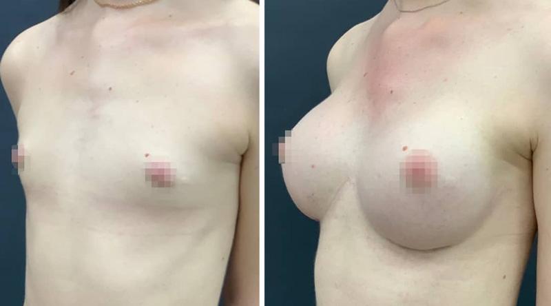 Увеличение груди с нулевого до третьего размера, фото до и после