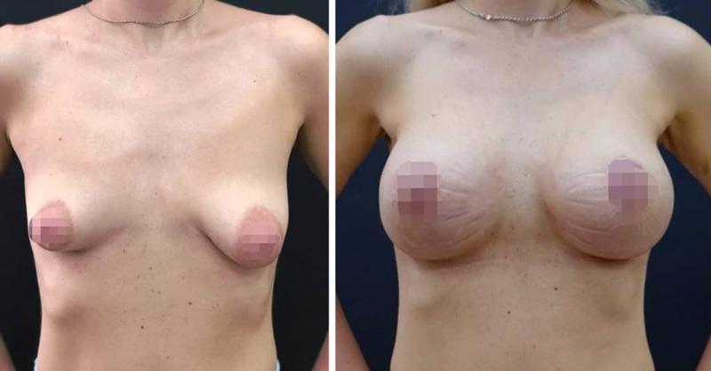 Увеличение тубулярной груди, фото до и после