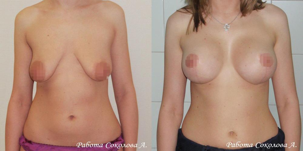 Вертикальная подтяжка с одновременной установкой имплантов, фото до и после