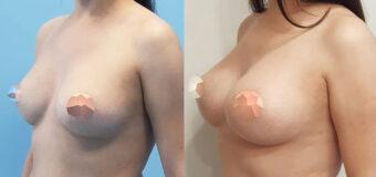 Замена круглых имплантов Евросиликон 225 мл на круглые импланты Ментор 400 мл через субмаммарный доступ.