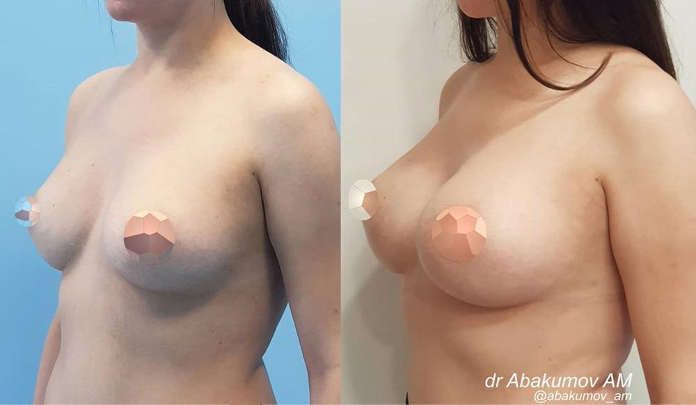 Замена круглых имплантов 225 мл на круглые 400 мл, фото до и после
