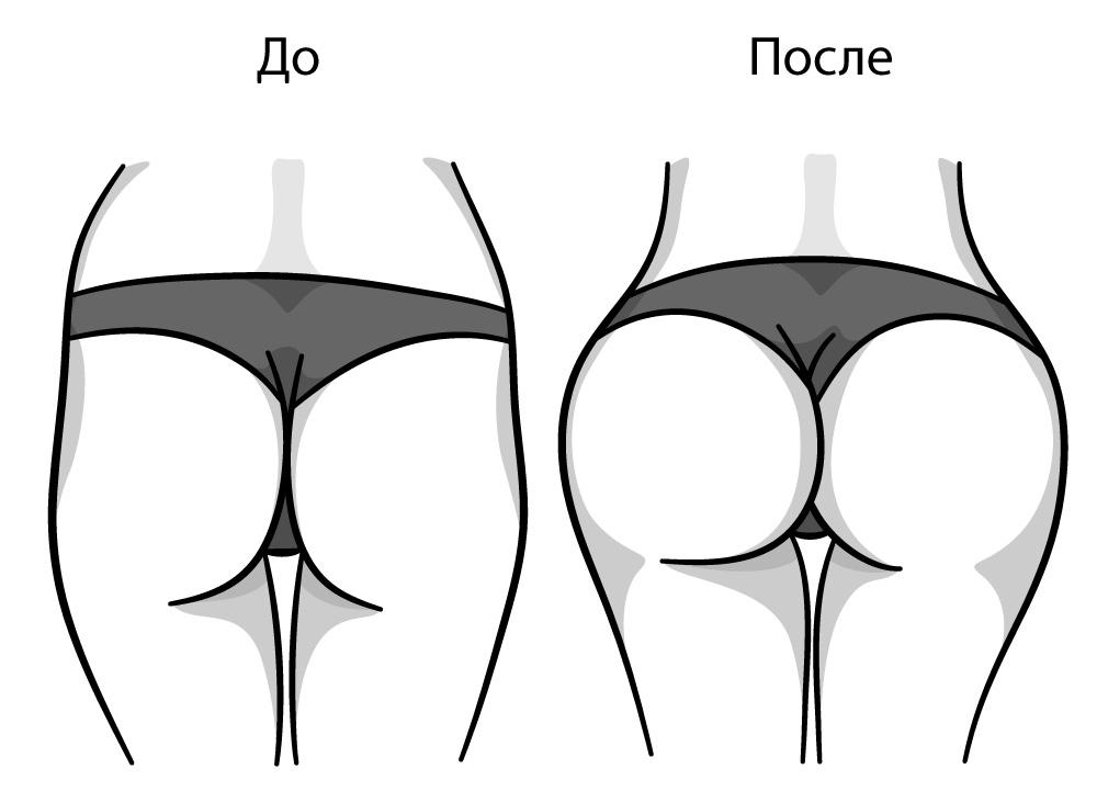 Заполнение впадин на боковой стороне бедра филлерами, до и после