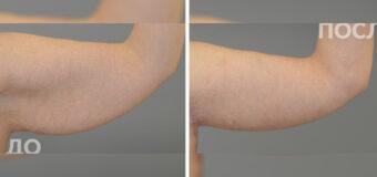 Пациентке была проведена брахиопластика. Были убраны излишки кожи, отчего окружность плеча стала значительно меньше, а руки стали выглядеть намного привлекательнее.