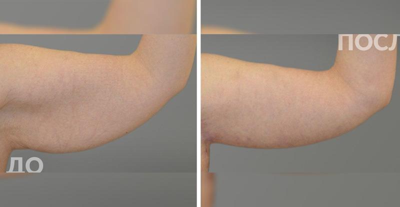 Брахиопластика у пластического хирурга Агапова Д. Г., фото до и после