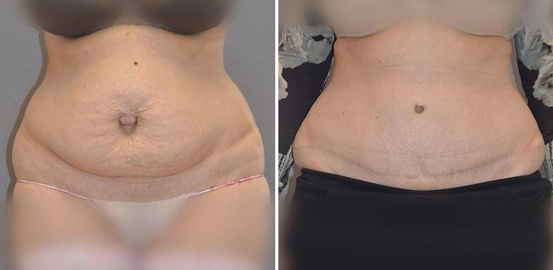 Классическая абдоминопластика с переносом пупка, фото до и после