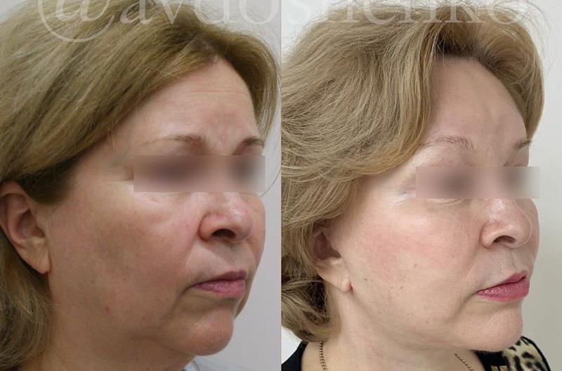 Лифтинг лица, фото до и после