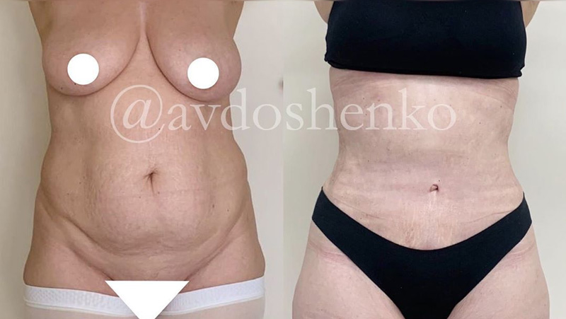 Липосакция и абдоминопластика, фото до и после