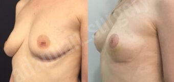 Пациентке выполнена мастопексия (подтяжка груди) по Хаммонду без эндопротезирования. Фото «после» сделаны через 10 дней после операции, сразу после снятия швов.