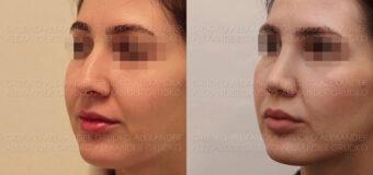 Пластика крыльев носа и уменьшение ноздрей