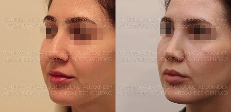 Пластика крыльев носа и уменьшение ноздрей, фото до и после