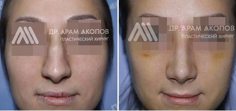 Пластика носа у хирурга Акопова А. А., фото до и после