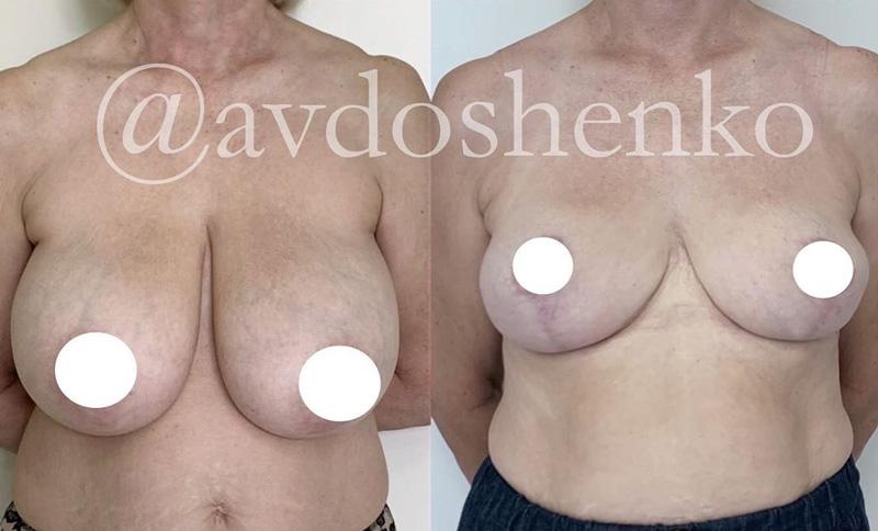 Редукционная маммопластика, фото до и после