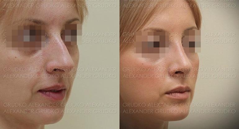 Ринопластика у пластического хирурга Грудько А. В., фото до и после