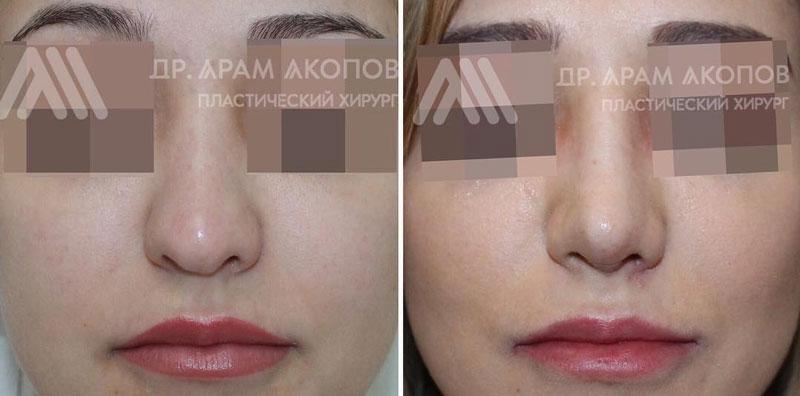 Риносептопластика с пластикой левого крыла носа, фото до и после