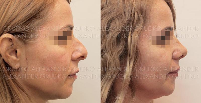 Риносептопластика у пластического хирурга Грудько А. В., фото до и после