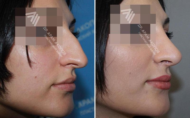 Удаление горбинки, подъем кончика и выравнивание носа, фото до и после