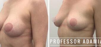 Удаление имплантатов из молочных желез и небольшая подтяжка. На фото – результат через 2,5 месяца после операции.