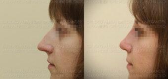 Уменьшение носа и восстановление дыхания