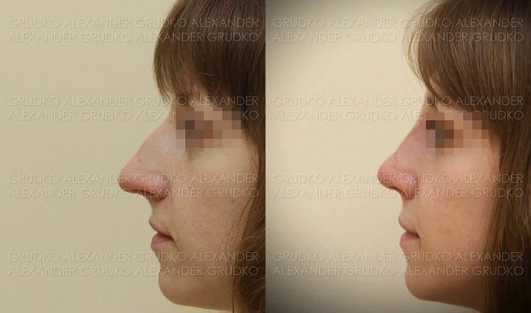 Уменьшение носа и восстановление дыхания, фото до и после