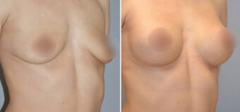 Пациентке была проведена увеличивающая маммопластика: через трансаксиллярный доступ (разрез в подмышечной впадине) были установлены грудные имплантаты ТМ Arion объемом 320 мл.