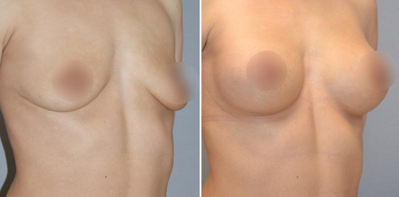 Увеличивающая маммопластика у Агапова Д. Г., фото до и после