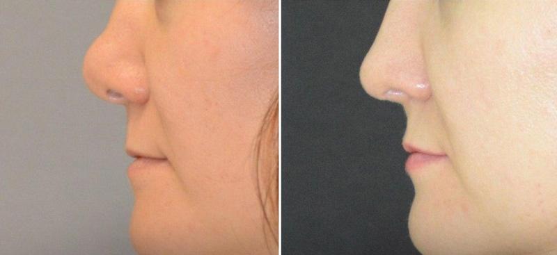 Вторичная риносептопластика у хирурга Агапова Д. Г., фото до и после