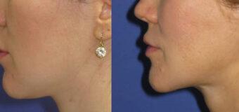 С целью сужения нижней трети лица пациентке проведена костная ментопластика V-line. Операция выполнена без наружных разрезов, все швы находятся внутри ротовой полости.