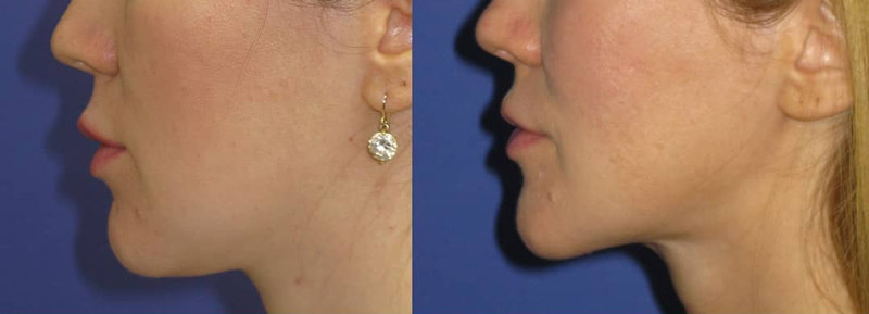 Костная ментопластика V-line, фото до и после