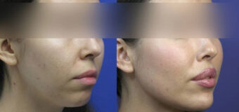 Ментопластика, хейлопластика, увеличение углов нижней челюсти