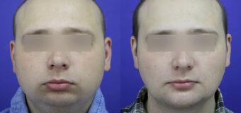 Мужчине проведена ментопластика с индивидуальным имплантом. Дополнительно была выполнена липосакция подбородочной области, чтобы сделать эффект от операции более выраженным.
