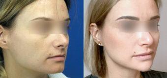 Для изменения формы овала лица пациентке был выполнен ряд хирургических вмешательств, а именно: уменьшение углов нижней челюсти, ментопластика с индивидуальным имплантатом, VY пластика губ.