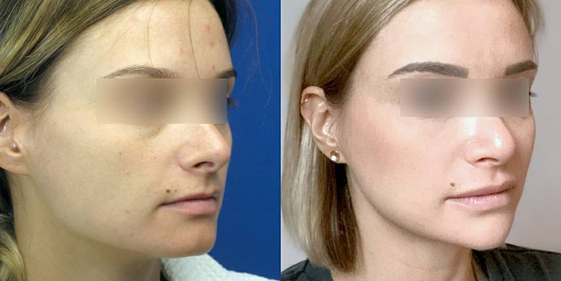 Ментопластика, уменьшение углов нижней челюсти и пластика губ, фото до и после