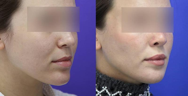 Уменьшающая гениопластика у хирурга Гурьянова А. С., фото до и после